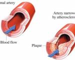پنج ماده غذایی که منجر به کاهش تری گلیسرید خون میشوند