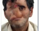 آغاز بزرگترین عمل جراحی تغییر چهره در ایران + تصاویر