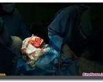 موفقیت بزرگترین عمل جراحی ترمیم چهره در ایران + گزارش تصویری