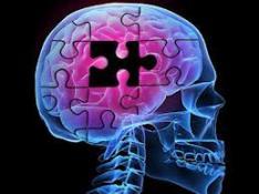 کاهش فراوانی ابتلا به آلزایمر در گروه سنی 65 سال به بالا