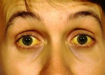 زردی چشم نشانه چیست؟