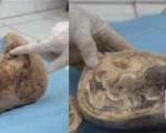 جنین نوزادی بعد از ۴۶ سال از شکم مادرش بیرون آمد!/عکس
