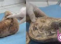 جنين نوزادي بعد از 46 سال از شکم مادرش بيرون آمد!/عکس