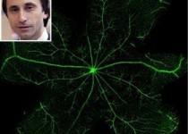 درمان شایعترین نابینایی کهنسالان با دستاورد دانشمند ایرانی