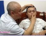 رشد بینی روی پیشانی مرد چینی /عکس