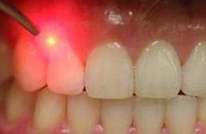استفاده از نوار سفید کننده دندان باید با احتیاط انجام شود