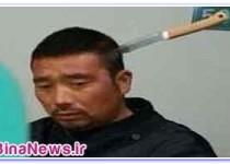 نجات مرد چيني با يک چاقو در سرش+تصاوير