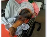 سهلانگاری مسئولان به قیمت پای دختر دانشجو + تصاویر دردناک