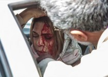 اولین تصویـر منتشر شده از بازیگـر زن سینما پس از تصادف