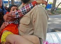 حمله سگ به 2 کودک در کمپ غدیر مشهد/تصاویر