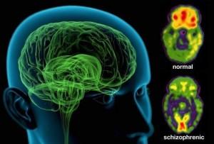 اسکیزوفرنی، شدیدترین بیماری روانی