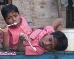 زندگی سخت برادرانی که از کمر متصل هستند /عکس