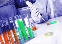 حسگر فوق حساس اندازهگیری پروتئین سرطانی پستان و رحم