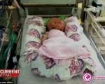 تولد نوزاد دو چهره/ تصاویر