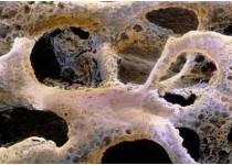 کشف پروتئین عامل بیماری استخوان شکننده