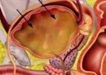 درد شکم، کاهش وزن و بیاشتهایی به گوشت از علائم سرطان معده است