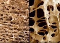 دستاورد جدید محققان ایرانی در بهبود ترمیم استخوان با کمترین عوارض جانبی