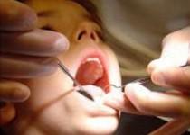 پوشش بیمهای خدمات دندانپزشکی کودکان زیر 12 سال