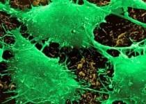 خودکشی سلولهای سرطانی با نانوذرات مغناطیسی