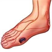 بیماران دیابتی از دستکاری زخم پاها خودداری کنند