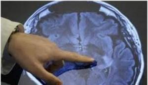 موفقیت محققان ایرانی در درمان معتادان شیشه با تحریک مغزی