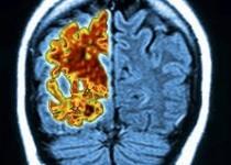 آزمایش خون جدید برای تشخیص زودهنگام آلزایمر