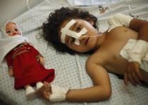 غزه؛ 515 شهید، 3500 زخمی