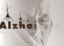 از آلزایمر بیشتر بدانیم