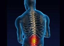 عمل جراحی دیسک کمر در صورت بروز اختلال عصبی ضروریست