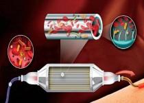 ساخت ابزاری برای زدودن عفونت از خون