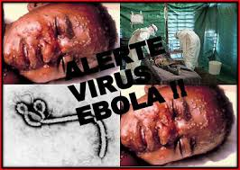 افشاگری یک نشريه روسي درباره ویروس ابولا