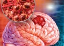 حذف دائمی سلولهای سرطانی مغز با روش جدید محققان