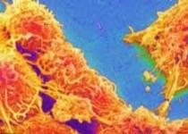 رشد تومورهای سرطانی در شب سریعتر میشود