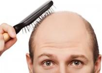مژده پژوهشگران برای طاسها؛ ریزش موهایتان را با موچین درمان کنید!
