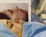 گزارش رویترز از عمل بینی در ایران/تصاویر