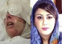 قربانی اسیدپاشی اصفهان: برایم دعا کنید