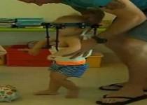پیوند سر جدا شده کودک به گردنش/عکس