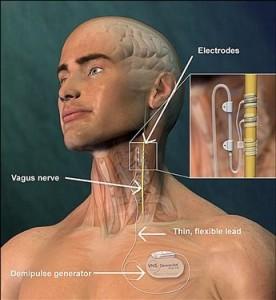 بهبود نارسایی قلبی با دستگاه جدید محرک رگ گردن