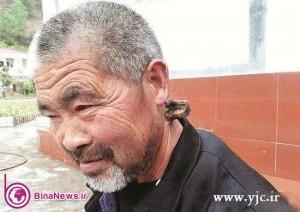 مردی که در گردنش شاخ دارد! +عکس