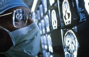 دیابت نوع 2 مغز را پیر میکند