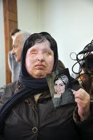 دولت روحانی كه آمد اسیدپاشیها هم آمد!